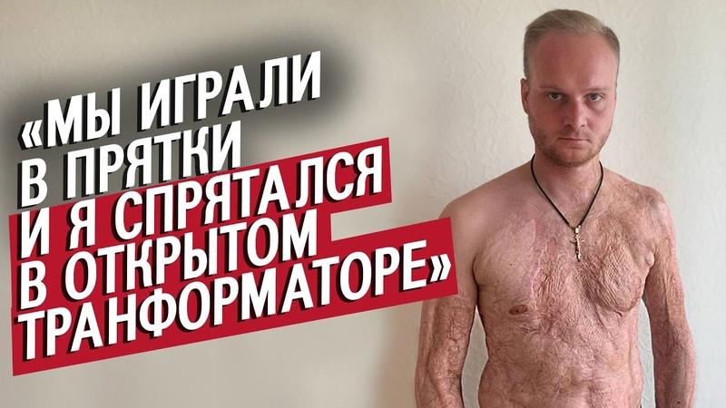 Меня ударило 10 000 вольт Игорь Быть молодым