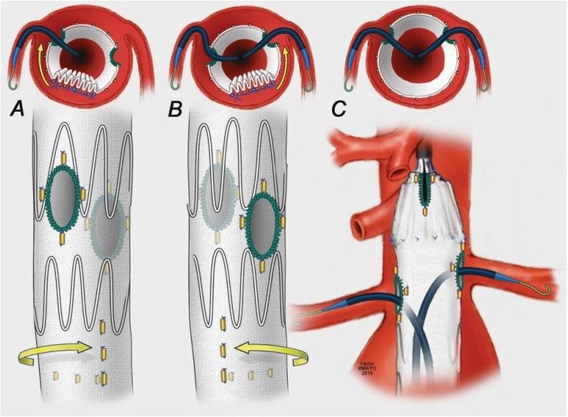 ... нужно не только подвести проводник на нужный уровень, нужно еще и под правильным углом завести его в артерию (например, to rotate clockwise for ACCESS to the right renal artery), бывает так, что приходится даже заводить в артерию в обход или обратном направлении (retrograde ACCESS)...